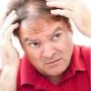 Причини випадіння волосся у чоловіків, симптоми, способи лікування
