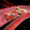 Причини високого холестерину в крові