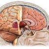 Ознаки пухлини головного мозку