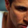 Проблема гіпергідрозу голови: чи потрібно хвилюватися?