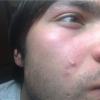 Роздратування на обличчі