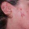 Саркоїдоз симптоми, ознаки саркоїдозу