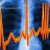 Симптоми аритмії серця