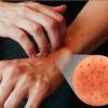 Симптоми і форми атопічного дерматиту