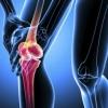 Симптоми і лікування доа колінного суглоба