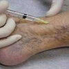 Симптоми і лікування тромбофлебіту вен нижніх кінцівок