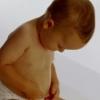 Симптоми пупкової грижі