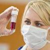 Симптоми вич інфекції, механізм розвитку хвороби, спід-дисидентство