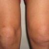 Синовит колінного суглоба: види захворювання і його основні ознаки