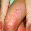 Скарлатина у дорослих - симптоми, лікування, ознаки