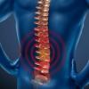 Сколіоз 2 ступеня - симптоми, лікування, профілактика