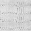 Тахікардія (серцебиття)