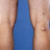 Що таке кіста бейкера колінного суглоба?