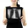 Запалення легенів: симптоми без температури