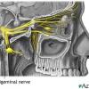 Запалення (невралгія) трійчастого нерва: симптоми і лікування