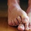 Все про грибку стоп і нігтів і його лікуванні