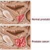 Все про рак передміхурової залози (простати) і його лікуванні