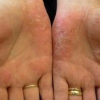 Захворювання шкіри рук і ніг