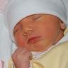 Жовтяниці у новонароджених