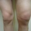 Рідина в колінному суглобі